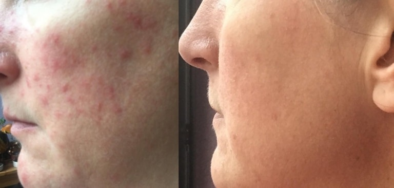 Example of before and after skin inflammation